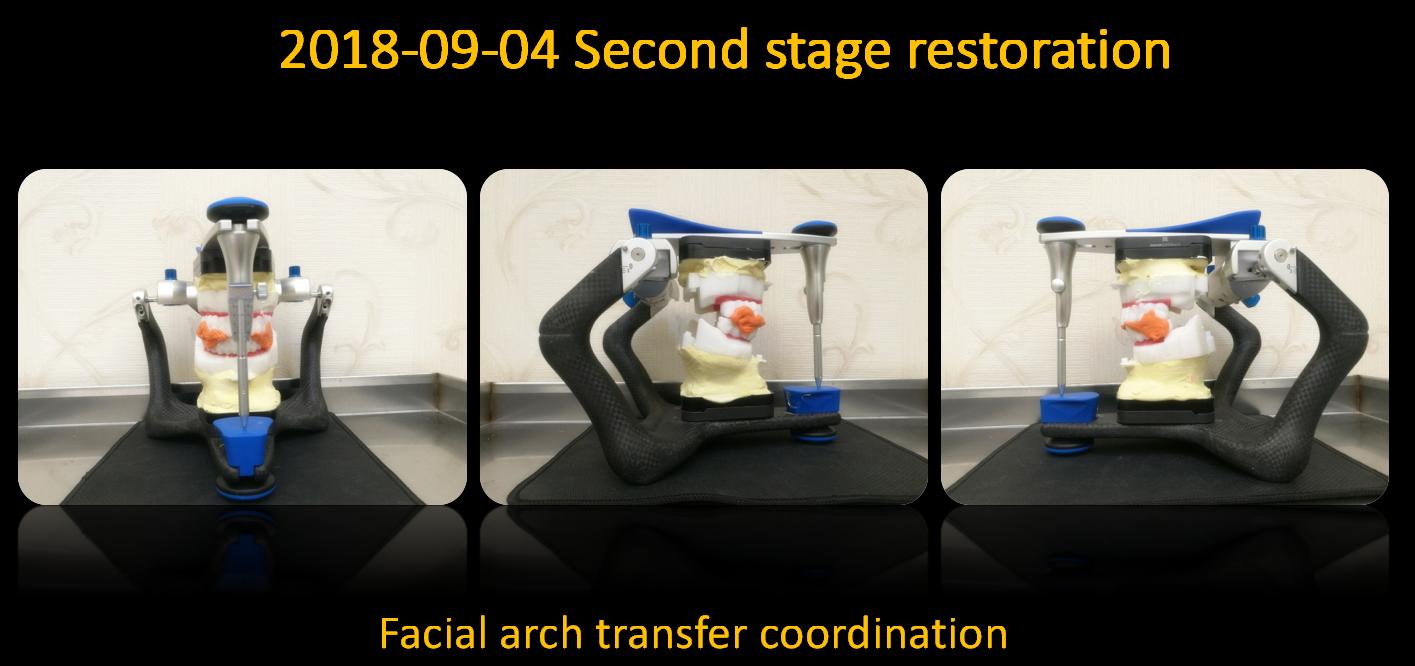 Facial_arch_transfer_coordination_2