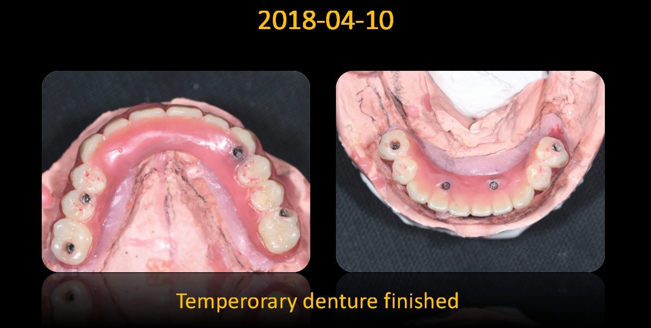 Temperorary_denture_finished