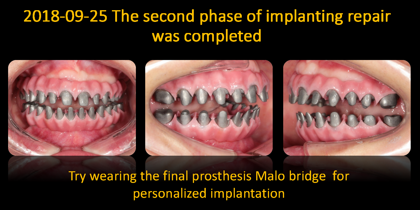 Try_wearing_the_final_prosthesis_Malo_bridge_for_personalized_implantation