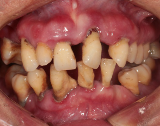 Photos_of_preliminary_oral_diagnosis