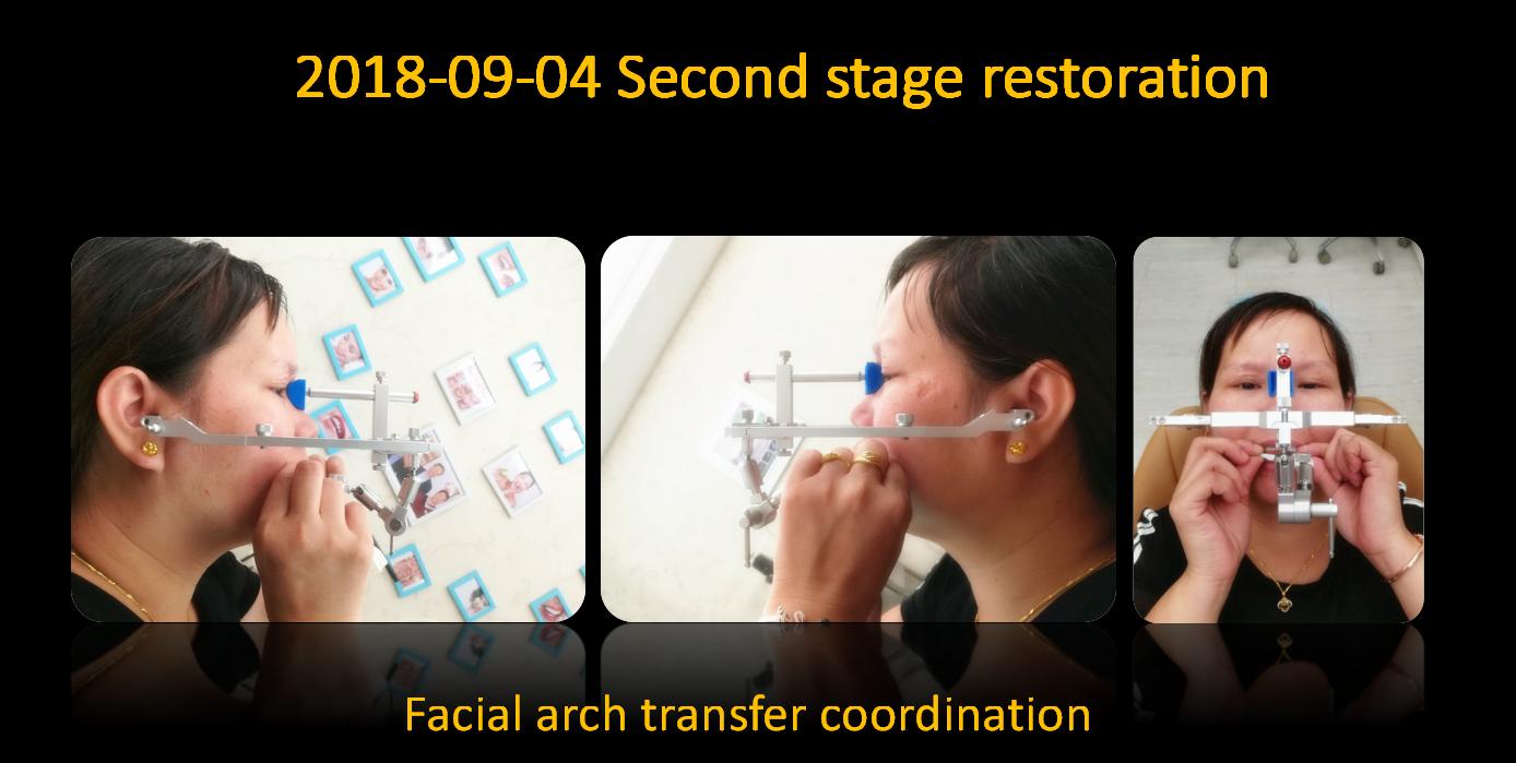 Facial_arch_transfer_coordination_1