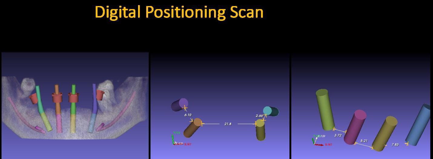 Digital_Positioning_Scan_3