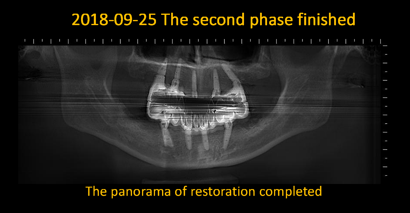 The_panorama_of restoration_completed