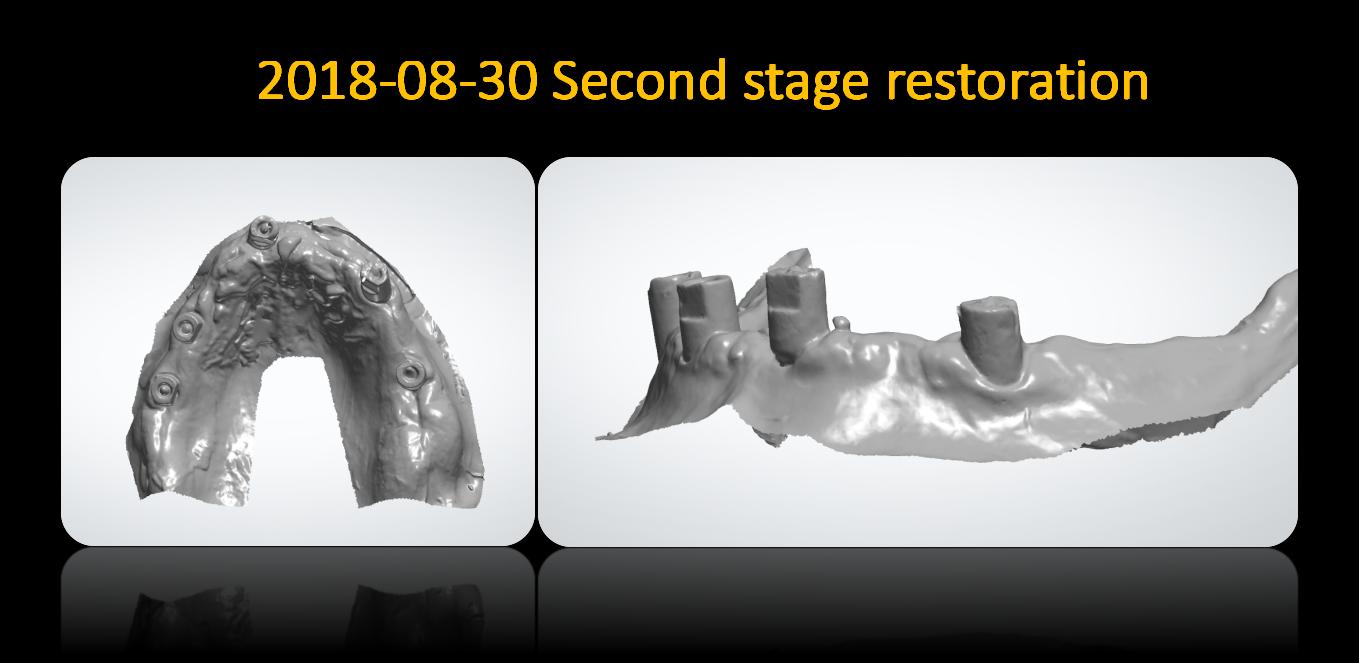 Second_stage_restoration
