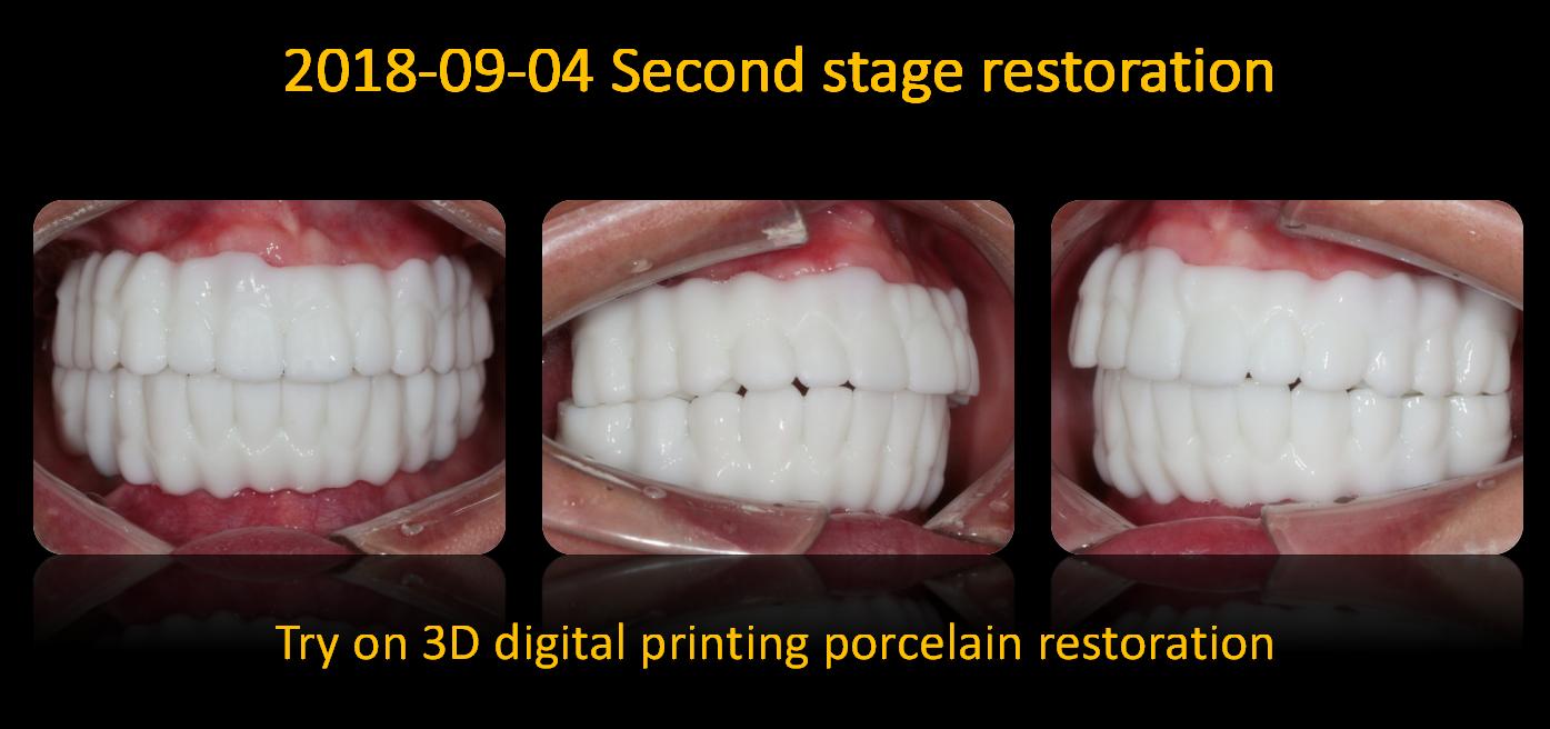 Try_on_3D_digital_printing_porcelain_restoration