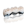Porcelain-Fused-to-Metal (PFM) Crowns