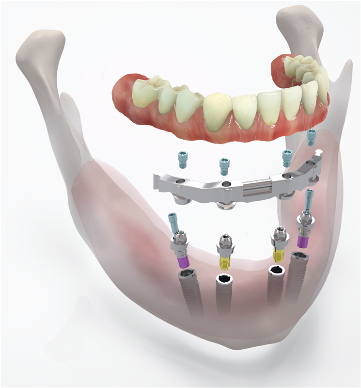 Complex_implant_restoration_from_CDL