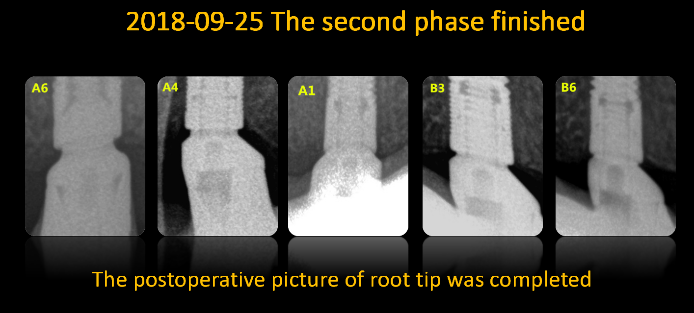The_postoperative_picture_of_root_tip_was_completed