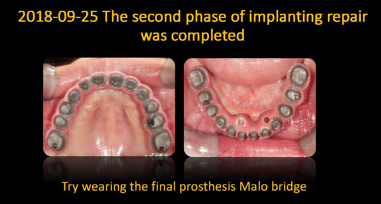 Try_wearing_the_final_prosthesis_Malo_bridge