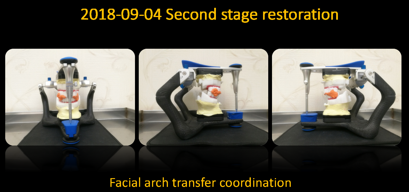 Facial_arch_transfer_coordination_2