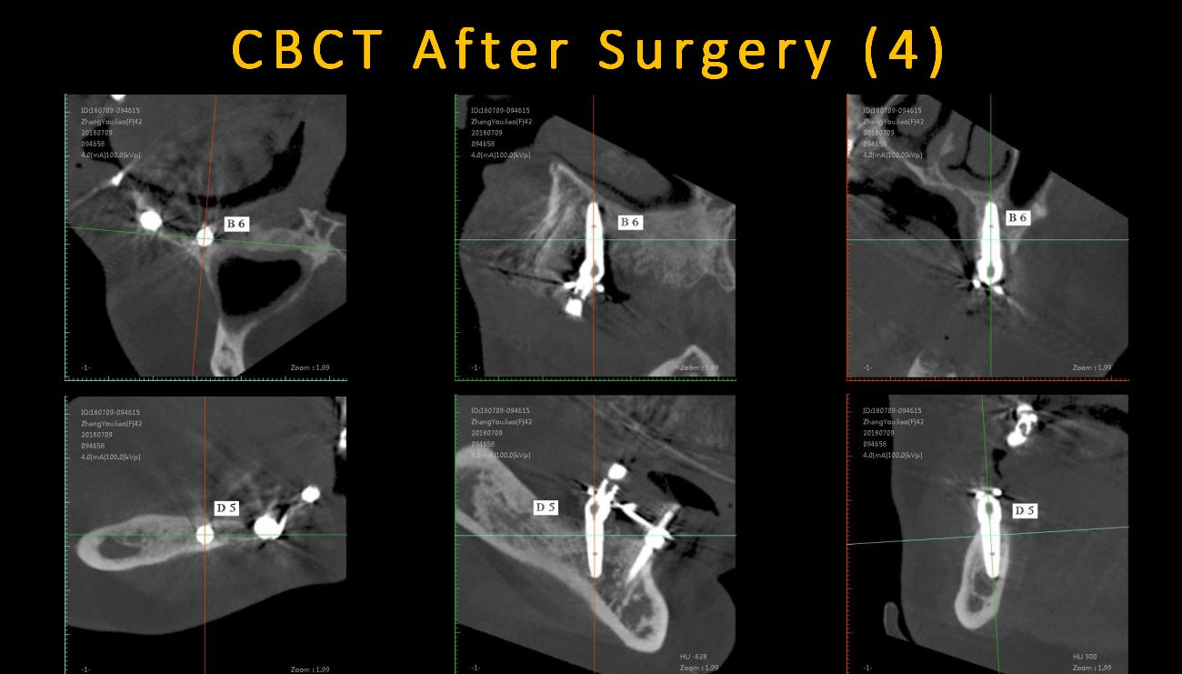 CBCT_After_Surgery_(4)