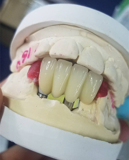 dental_implant_case