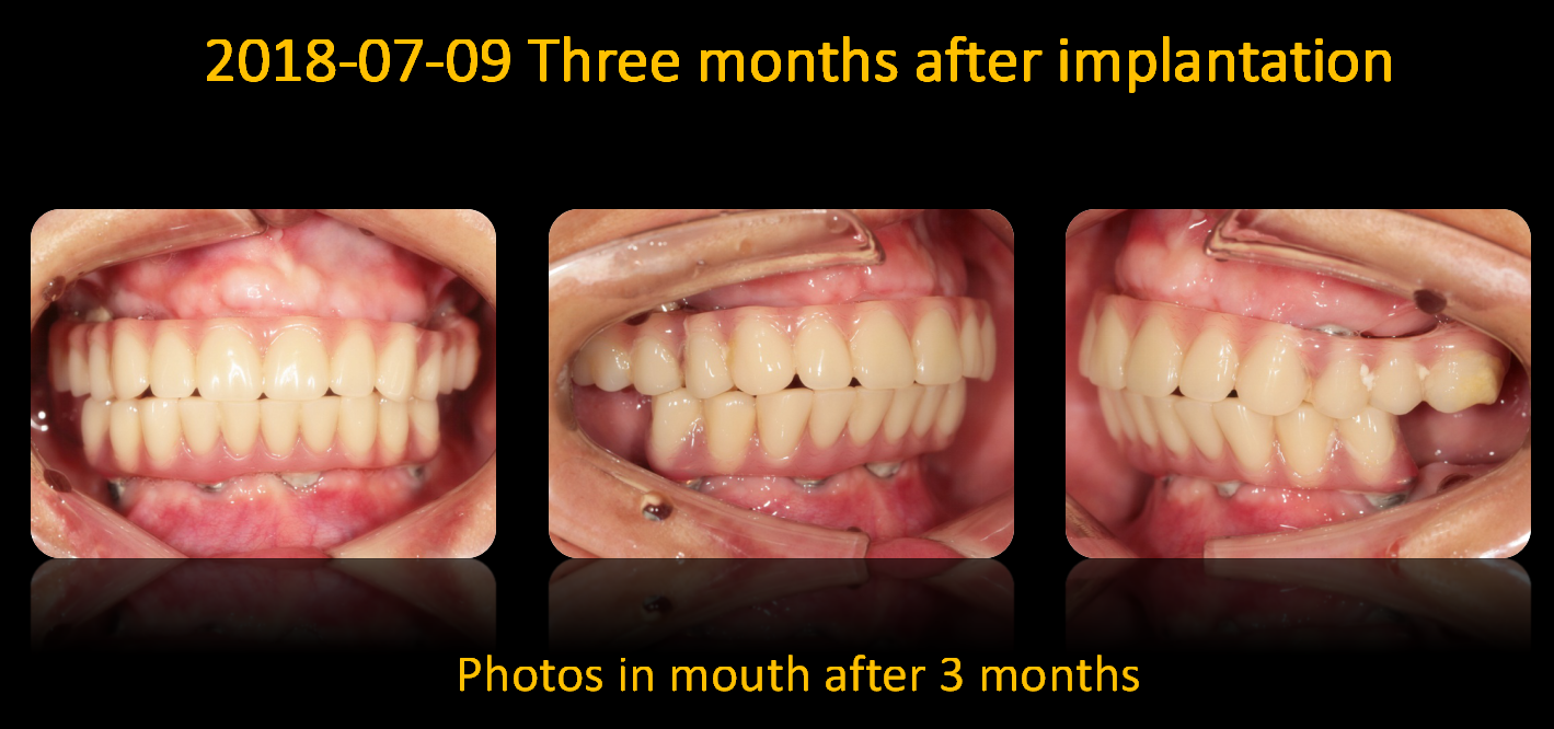 Photos_in_mouth_after_3_months_1