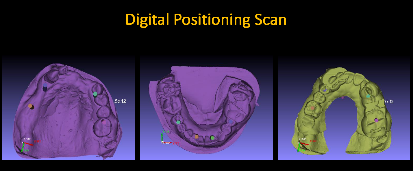 Digital_Positioning_Scan